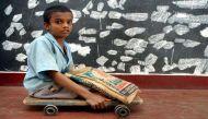 हैदराबाद में मिला पोलियो का वायरस, स्पेशल कैंपेन की तैयारी