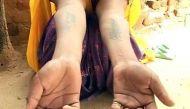 राजस्थान: दहेज लोभियों ने बहू के माथे पर लिखा 'मेरा बाप चोर है'