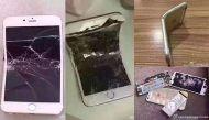 जेब में आईफोन 6 फटने से गंभीर रूप से जल गया आदमी