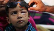 इंशा के बाद 13 साल की इफरा की आंखें भी पैलेट से ज़ख़्मी