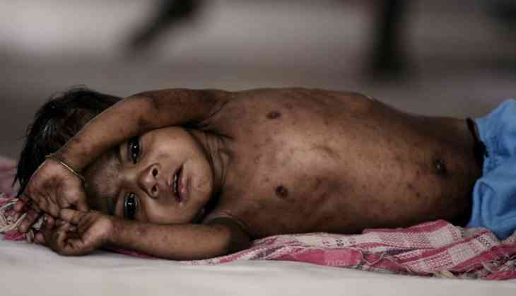 Cause for concern: India only 116th on global child welfare index