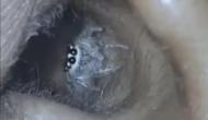 महिला के कान से जिंदा मकड़ी निकलती देख डॉक्टर हुए हैरान
