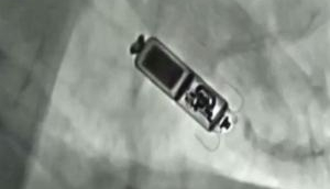78-year-old receives world's smallest leadless pacemaker