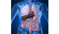 An enzyme can explain link between fatty liver, diabetes and PCOS