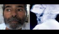 'पिनमैन': इस शख़्स को पता नहीं कैसे शरीर में घुस गर्इं सैकड़ों सुइयां