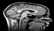 Study offers hope to neuro-tumor patients