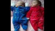 चमत्कार: मौत से जीती मां की ममता, मरने के चार महीने बाद जन्मे जुड़वा बच्चे