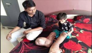 6 साल के बच्चे को हुर्इ एेसी बीमारी, डॅाक्टर भी नहीं कर सके जिसका इलाज