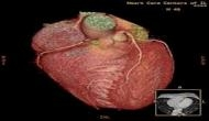 दो दिल एक जानः अब आपके सीने के साथ पेट में भी होगी धड़कन