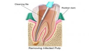 This gel can improve root canal results
