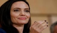 Pictures inside: Teenager undergoes 50 surgeries to look like Angelina Jolie