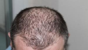 Hair Fall Control Tips : अगर आप भी हैं गंजेपन से परेशान, तो इन फलों की मदद से दूर करें ये टेंशन