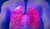 Busting myths about COPD