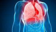 Vitamin C increases effect of TB drugs, says Study