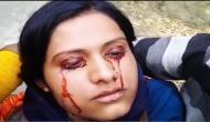 पत्नी की आंखों से निकलता है खून, पति ने 'चुड़ैल' बताकर छोड़ दिया
