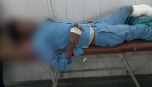 शर्मनाक: डॉक्टरों ने मरीज की कटी टांग को बनाया तकिया, सोशल मीडिया में तस्वीरें वायरल