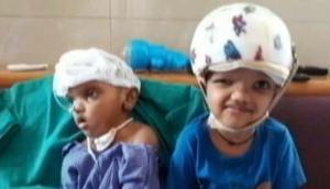 AIIMS के डॉक्टरों का चमत्कार, सिर से जुड़े दो भाईयों को किया अलग