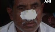 Bizarre! Man bites off brother's nose for money