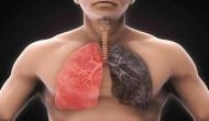 More than 1 in 10 people with lung diseases could be sick due to occupational hazards