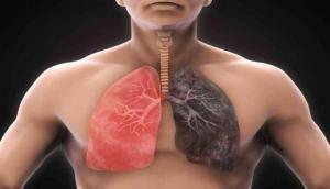 इन घरेलू नुस्खों से करें सांस फूलने की बीमारी का इलाज, चंद दिनों में दिखने लगेगा फर्क
