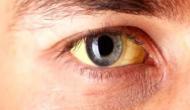आपकी आंखों में भी हैं इस तरह के धब्बे तो हो सकते हैं पागलपन के शिकार!