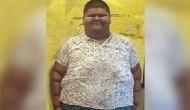 दुनिया का सबसे वजनी बच्चे का डॉक्टर्स ने सर्जरी से कम किया इतना वजन