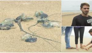 Blue bottle jellyfishes injure many at Mumbai beaches