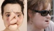 Face transplant: 21-Year-Old girl from United States gets new life after shooting herself in the face