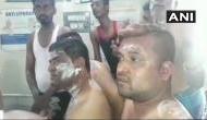 कर्नाटक: निकाय चुनाव में जीत का जश्न मनाने के दौरान कांग्रेस कार्यकर्ताओं पर एसिड अटैक, 25 झुलसे