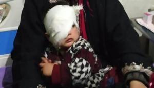 दर्दनाक: पेलेट गन का शिकार हुई 20 महीने की कश्मीरी बच्ची, जा सकती है आंख की रोशनी