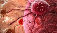 Study: Trends show fewer US cancer patients seeking care since start of pandemic