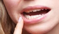 सावधान! मुंह में छाले होने पर न करें इसे नजरअंदाज, वरना हो सकती है ये गंभीर बीमारी