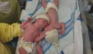 पहले बच्चे को जन्म देने के 26 दिन बाद दोबारा मां बनी ये महिला, दिया जुड़वा बच्चों को जन्म