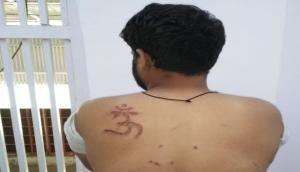 तिहाड़ जेल में बंद मुस्लिम कैदी ने अधिकारी पर लगाए गंभीर आरोप, जबरन पीठ पर गोद दिया 'ओम'