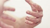 कांपते हैं आपके हाथ-पैर तो हो जाएं अलर्ट, कहीं आप इस गंभीर बीमारी के तो नहीं हैं शिकार?