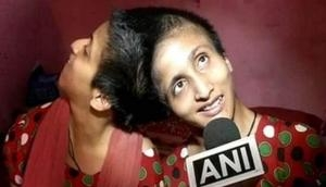 सिर से जुड़ी इन बहनों को भी मिला अलग-अलग वोट डालने का अधिकार