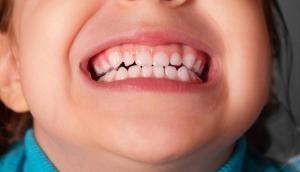 अनोखा मामला: बच्चे के जबड़े में हो रहा था दर्द, जब डॉक्टरों ने की सर्जरी तो निकाले 526 दांत, देखें फोटो