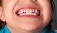 खौफनाक: लगातार रो रहा था बच्चा, चुप कराने के लिए मां ने उसके होठों पर लगा दिया फेविक्विक