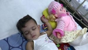 Delhi doctors plaster doll to convince toddler for her fractured limbs treatment; see pic