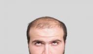 अब गंजे होने पर घबराना बंद करिए, बाजार में आ गई है बाल उगाने वाली मशीन