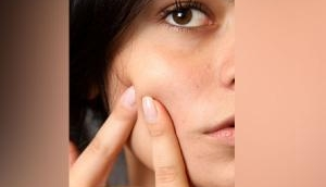Daily consumption of sweets and cakes can cause acne!