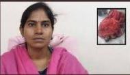 ऑटो-रिक्शा चालक ने महिला तहसीलदार को दफ्तर में जिंदा जलाया, मौके पर मौत