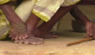 ये है देश में अंधविश्वास, बीमारी के कारण इस महिला के पांव में हैं 20 उंगलियां तो चुडै़ल समझकर मारते हैं लोग