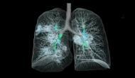 कोरोनावायरस से संक्रमित फेफड़े की पहली 3D तस्वीर आई सामने, देखते ही सहमी दुनिया