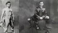 पूरी जिंदगी लोगों के लिए रहस्य बना रहा तीन टांगों वाला ये इंसान, 77 साल तक रहा जिंदा