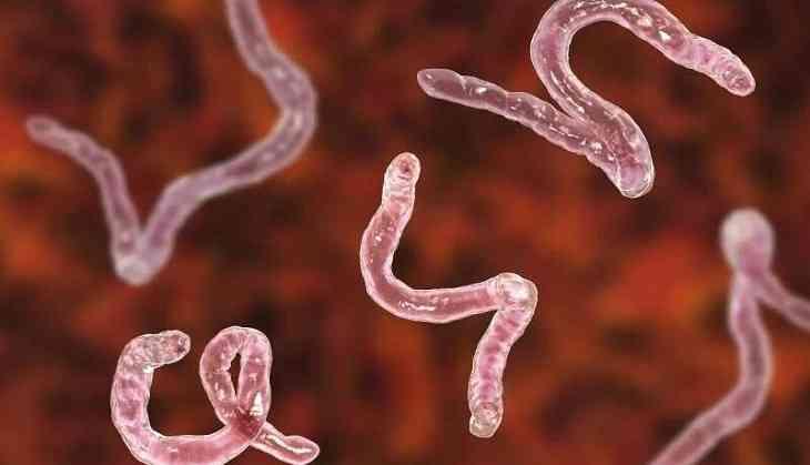 Tapeworm larvae in brain cause Australian woman's headaches
