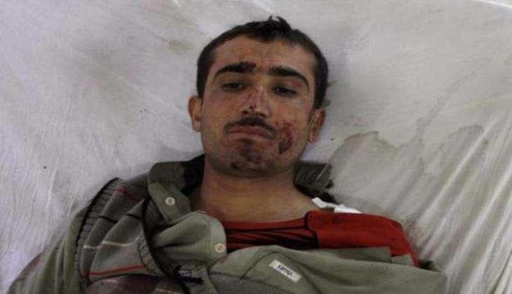Quetta attack survivor recalls the horrific strike that killed 62, injured 117